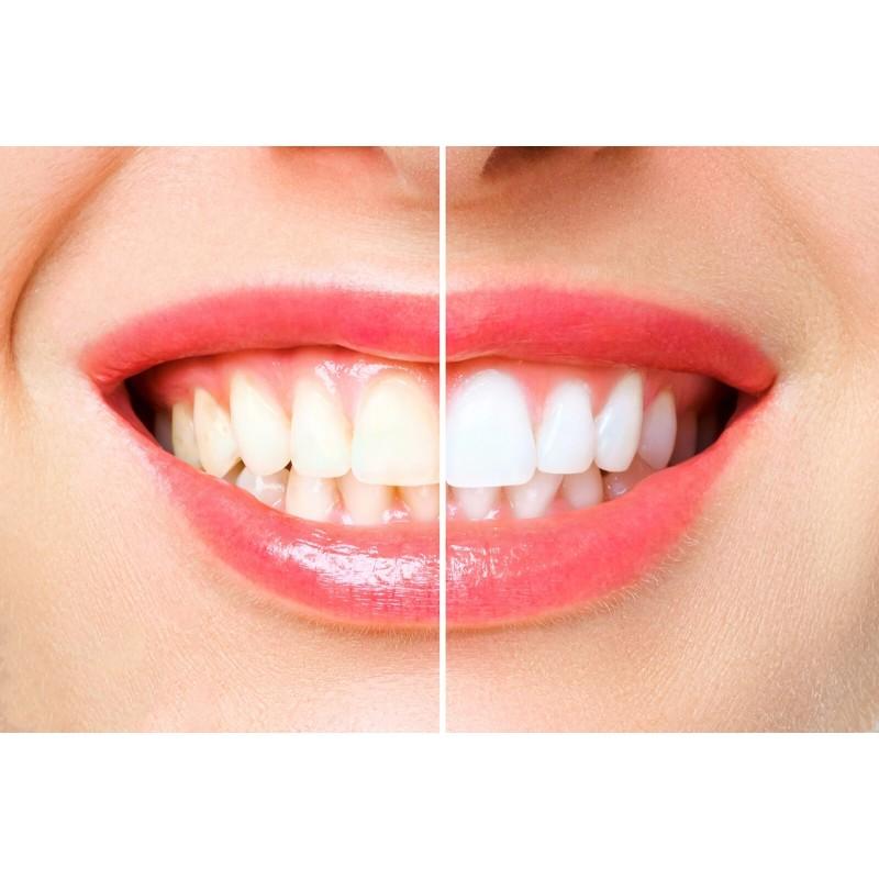 3-delni set VELLA za profesionalno izkušnjo ščetkanja zob vsebuje sonično zobno ščetko VELLA, potovalni etui in dodatni nadomestni nastavek v beli barvi. Sonična električna zobna ščetka VELLA je vaša nova pot do popolne ustne higiene. Sonično gibanje zobne ščetke ustvari mikromehurčke, ki pripomorejo do občutno boljšega čiščenja zob, na povsem neagresiven način. Inovativno pristrižene ščetine zobne ščetke so mehke in prepojene z aktivnim ogljem, ki ohranja naravno belino vaših zob. VELLA opravi kar 31.000 enakomernih gibov na minuto, ki jih je s klasično zobno ščetko nemogoče opraviti v tako kratkem času.  Redno odstranjevanje zobnih oblog je ključnega pomena pri pomoči k težavam, kot so: zobne obloge, vnetje dlesni ali zadah. Izbirajte med 3 načini čiščenja, ki so prilagojeni vašim potrebam: funkcija osnovnega čiščenja, funkcija nežnejše masaže vaših dlesni ali funkcija za poliranje vaših zob. Potovalni etui za sonično električno zobno ščetko VELLA omogoča optimalen način shranjevanja doma ali med potovanjem. Hkrati bo vaša zobna ščetka vedno skrbno v čistem okolju. Primeren je za vsakodnevno rabo, saj omogoča enostavno magnetno zapiranje, v vedno čistem okolju. Setu je priložen še 1 dodatni nadomestni nastavek/glava za zobno ščetko VELLA, ki zdrži cca. 3 mesece.