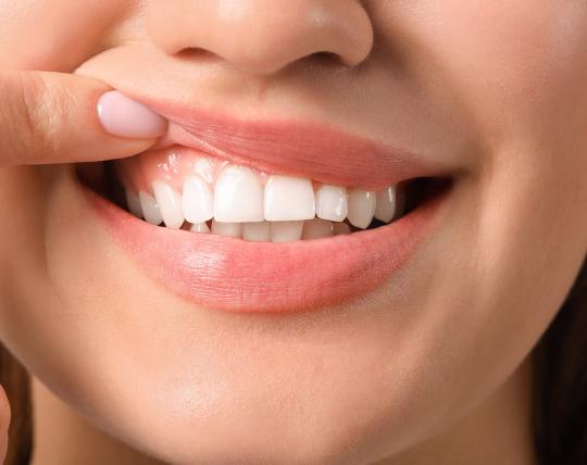 Brez uničevanja vaših dlesni
